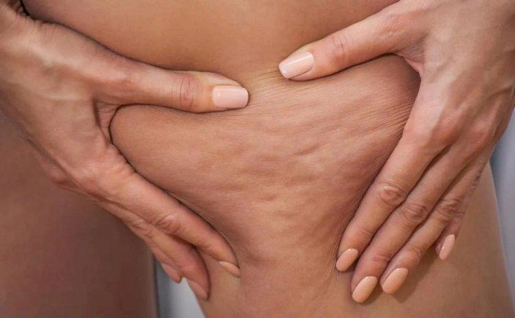 Anticelulit masaža - koliko može da pomogne?